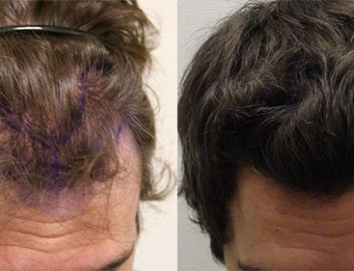 Hair Transplant Surgery – What Options Do You Have?