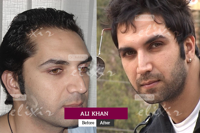 Ali Khan Hair Transplant at Elixir
