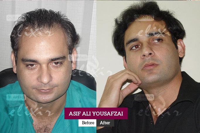 Asif Ali Yousafzai Hair Transplant
