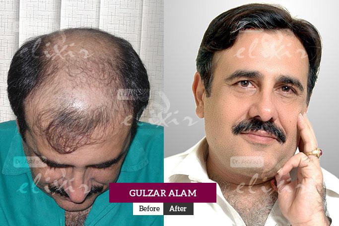 Gulzar Alam Hair Transplant