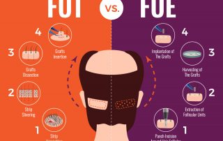 FUT vs FUE Hair Transplantation