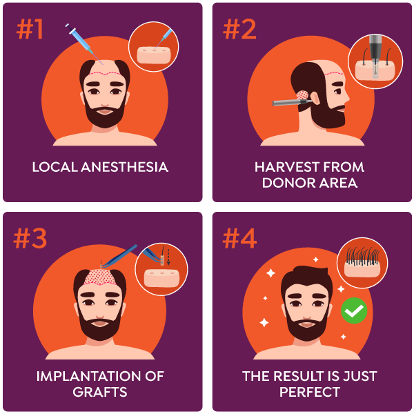 Elixir Hair Transplant Steps