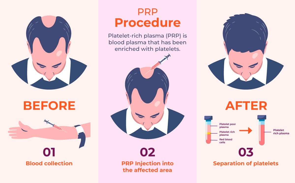 PRP, Platelet rich plasma Hair Transplant Elixir Islamabad