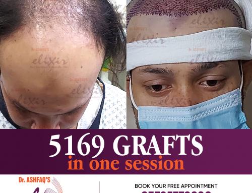 Hair Transplant Surgery Best Of Hair Loss Treatment
