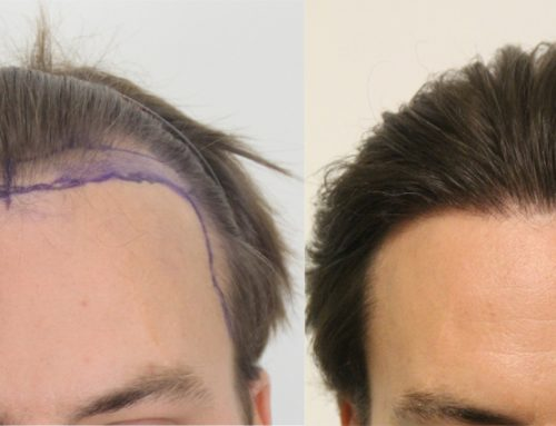 Eliminate Your Fear And Pick Up FUE Hair Surgery Today