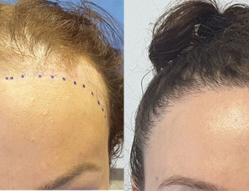 What Is The Best Procedure To Treat Androgenic Alopecia?